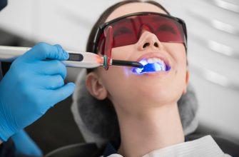 Способ отбеливания зубов
